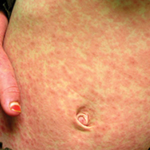 Measles Outbreak in Clark County - 74 Cases and Almost Over